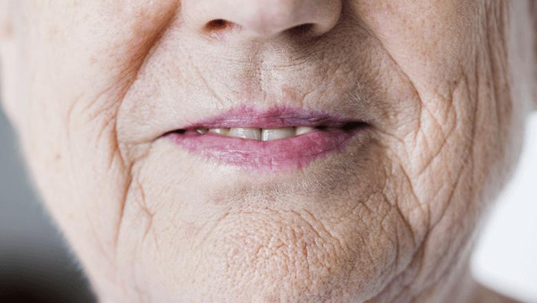 Xerostomia em idosos