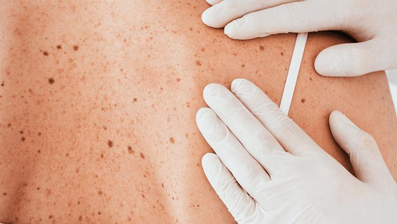 Câncer de pele em idosos